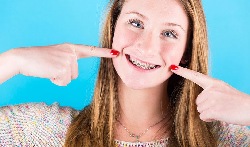duracion-ortodoncia