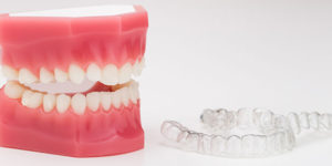 ortodoncia-dientes-apinados